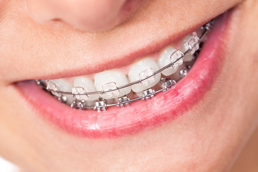 clear braces picture