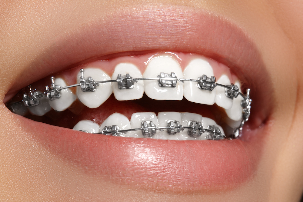 metal braces picture